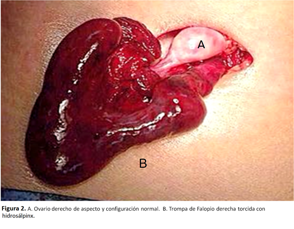 causas del heartache abdominal muscle linear unit sepultura iliaca derecha linear unit mujeres